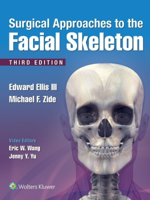 Surgical Approaches to the Facial Skeleton, 2019