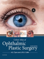 Colour Atlas of Ophthalmic Plastic Surgery, 2018 + video file