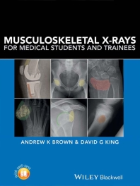 Musculoskeletal X‐rays, 2017
