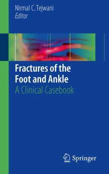 Fractures of the Foot and Ankle, 2018
