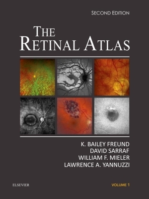 The Retinal Atlas, 2017 (2-volume)